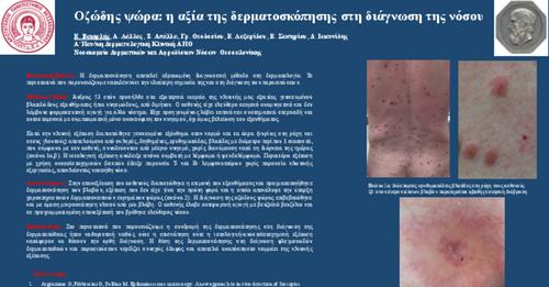Οζώδης ψώρα: Η αξία της δερματοσκόπησης