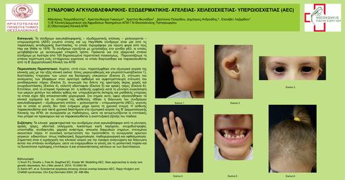 Σύνδρομο αγκυλοβλεφαρικής – εξωδερματικής ατέλειας – χειλεοσχιστίας – υπερωιοσχιστίας (AEC)